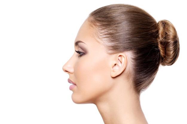 donna di profilo dopo profiloplastica